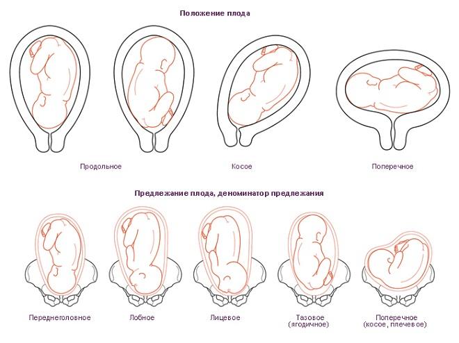 предлежание плода при беременности