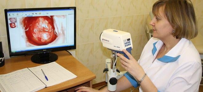 прижигание лейкоплакии шейки матки