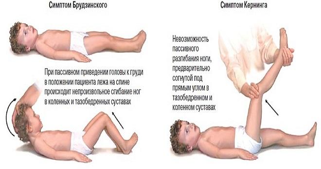 вирусный_менингит_у_детей