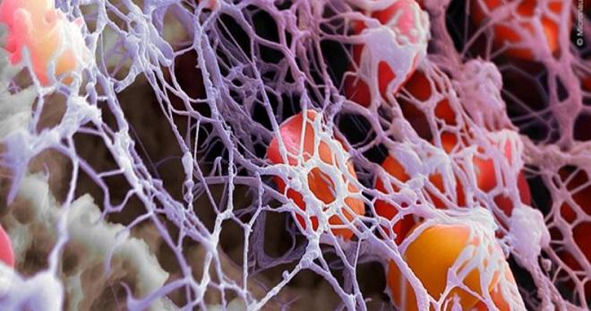 фибриноген выше нормы что это значит