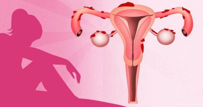эндометриоз симптомы и лечение