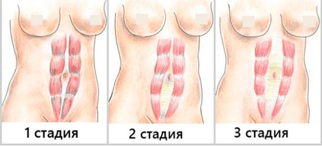 диастаз_лечение