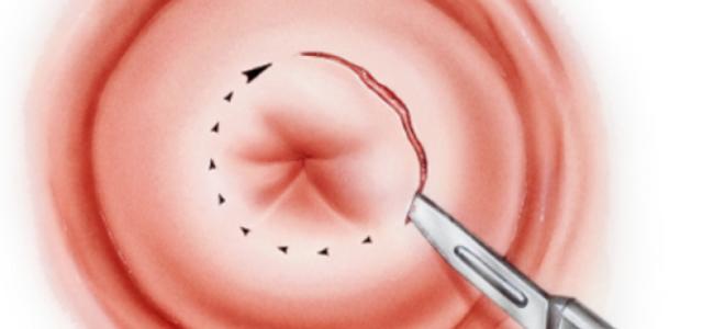 круговая_биопсия