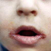 У ребенка трескаются губы