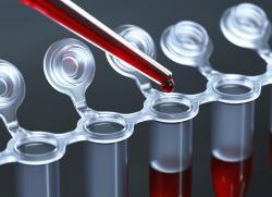 Анализ крови ПРЛ