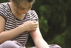 чем мазать укусы комаров ребенку