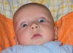 Пупок у новорожденного, уход за пупком новорожденного: воспаление, выделение, заживление пупка