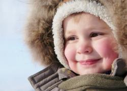 ребенок отморозил щеки