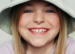 какие зубы должны выпадать