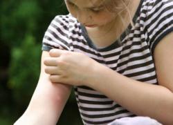 чем лечить укусы комаров у детей