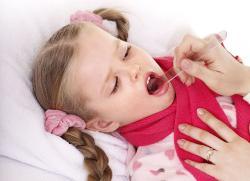 Признаки трахеита у детей