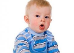 острый ларингит у детей симптомы