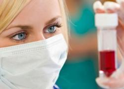 цитомегаловирусная инфекция  анализ