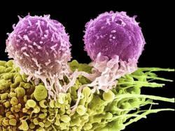 у ребенка повышены лимфоциты