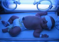 желтушка у новорожденных лечение