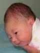 Кефалогематома для новорожденных