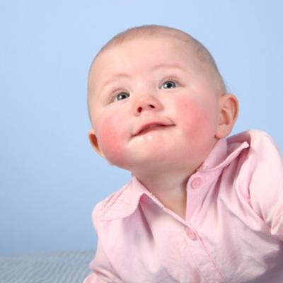 пищевая аллергия симптомы и лечение